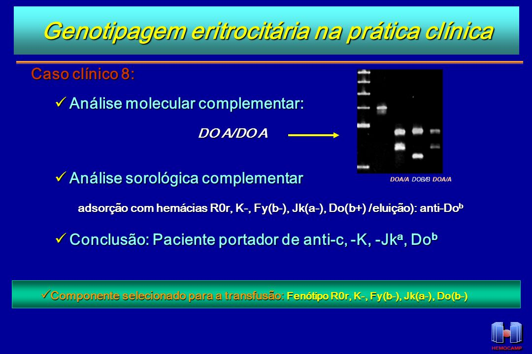 Caso clínico 8: Análise molecular complementar: Análise molecular complementar: DO A/DO A DO A/DO A Análise sorológica complementar Análise sorológica