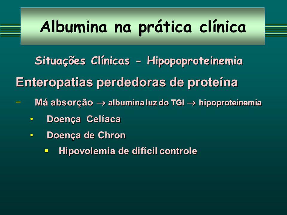 Albumina na prática clínica Situações Clínicas - Hipopoproteinemia Enteropatias perdedoras de proteína Má absorção albumina luz do TGI hipoproteinemia