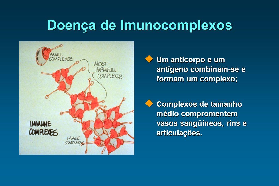 Doença de Imunocomplexos Um anticorpo e um antígeno combinam-se e formam um complexo; Um anticorpo e um antígeno combinam-se e formam um complexo; Com
