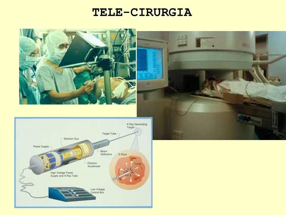 Telediagnóstico Tele-cirurgia Hospital Inteligente