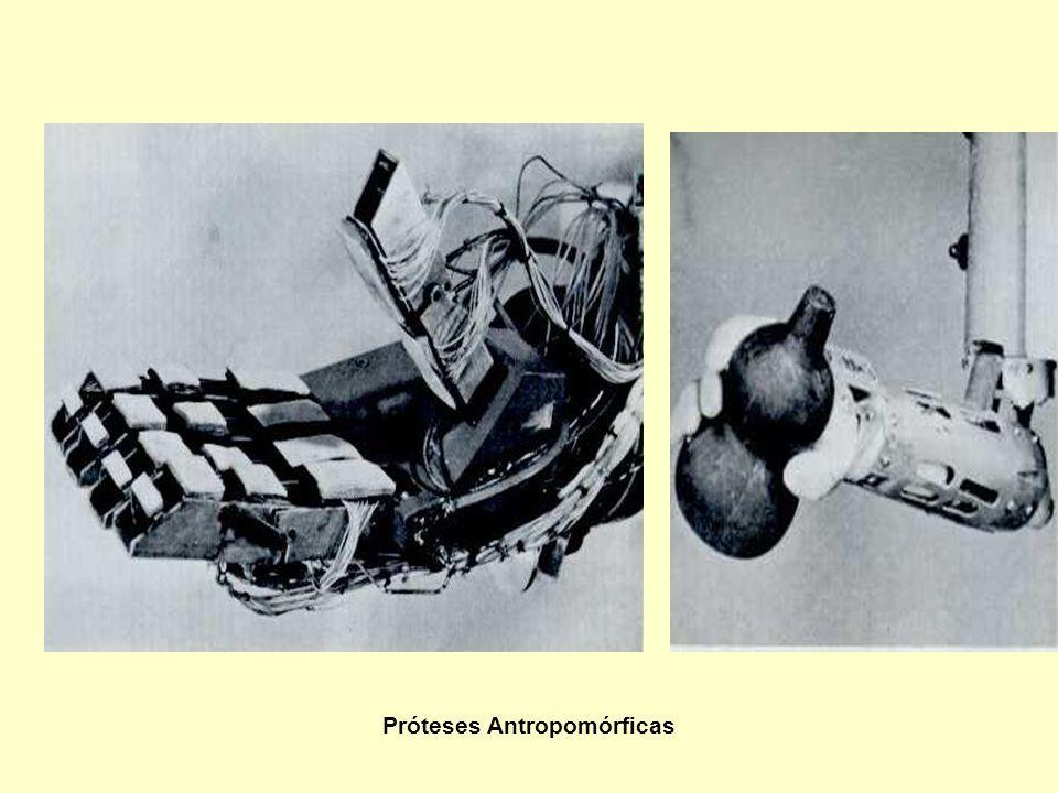 Próteses Antropomórficas