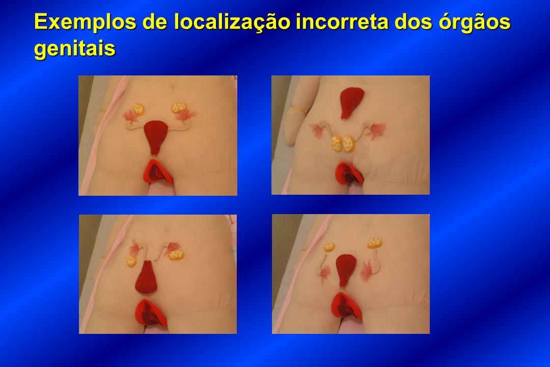 Exemplos de localização incorreta dos órgãos genitais