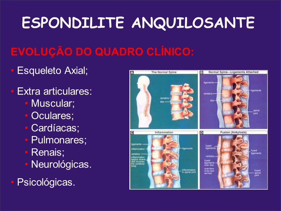 CAPACIDADE FUNCIONAL Incapacidade parcial ou total na realização das AVDs Inflamação crônica Alterações posturais Inflamação crônica Alterações posturais Limitações e incapacidades funcionais