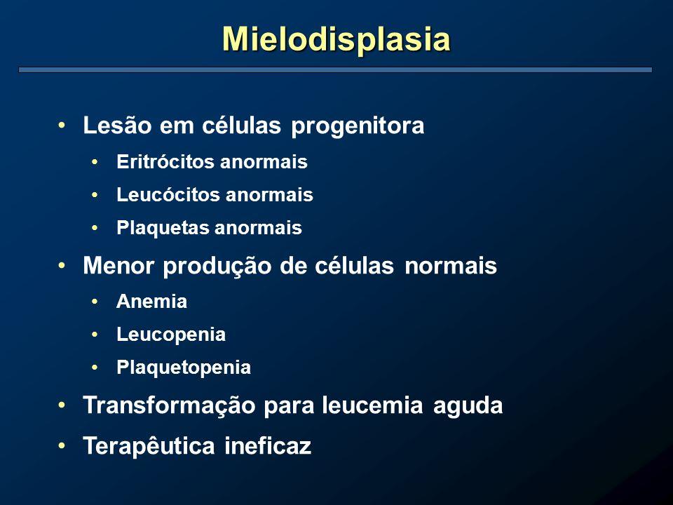 Mielodisplasia Lesão em células progenitora Eritrócitos anormais Leucócitos anormais Plaquetas anormais Menor produção de células normais Anemia Leuco
