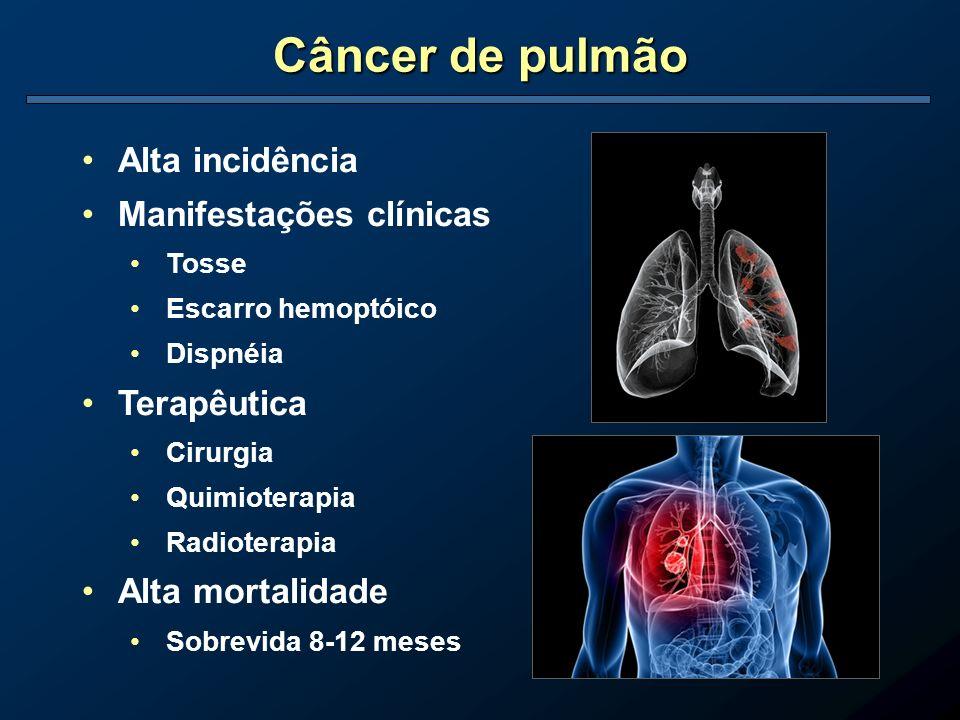 Câncer de pulmão Alta incidência Manifestações clínicas Tosse Escarro hemoptóico Dispnéia Terapêutica Cirurgia Quimioterapia Radioterapia Alta mortali