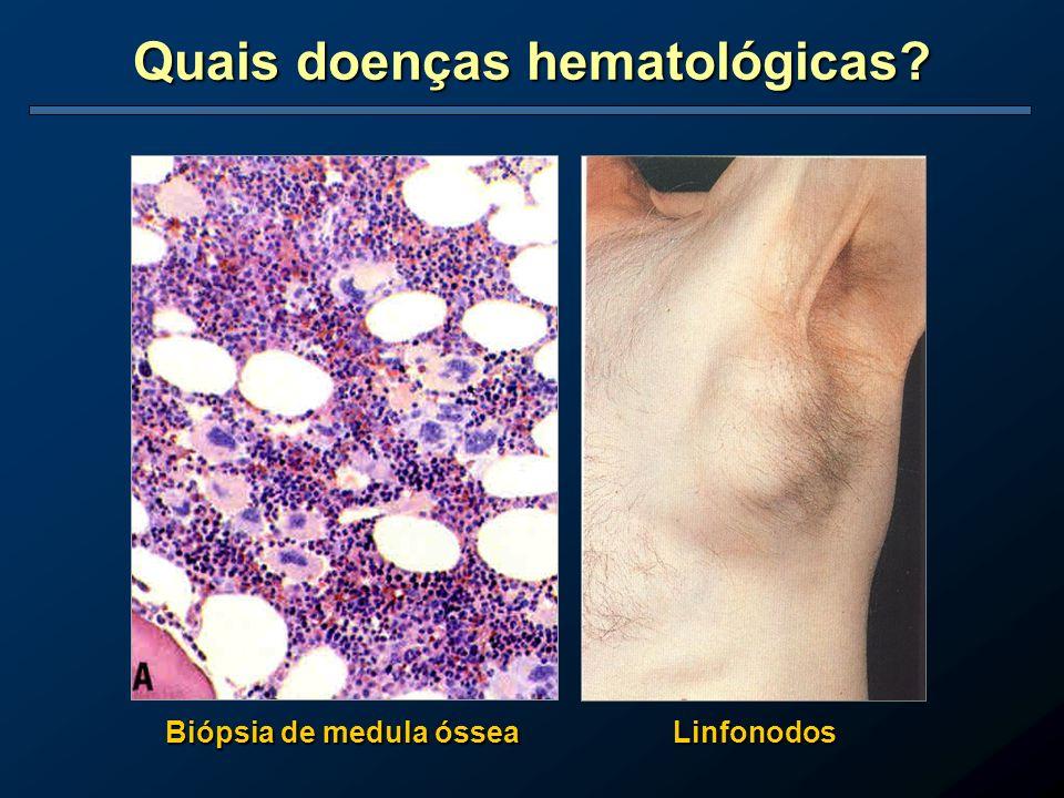 Quais doenças hematológicas? Biópsia de medula óssea Linfonodos
