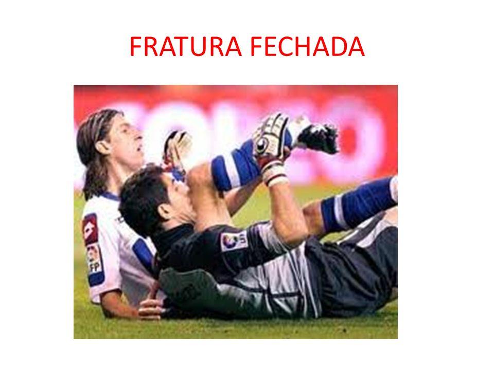 FRATURA FECHADA