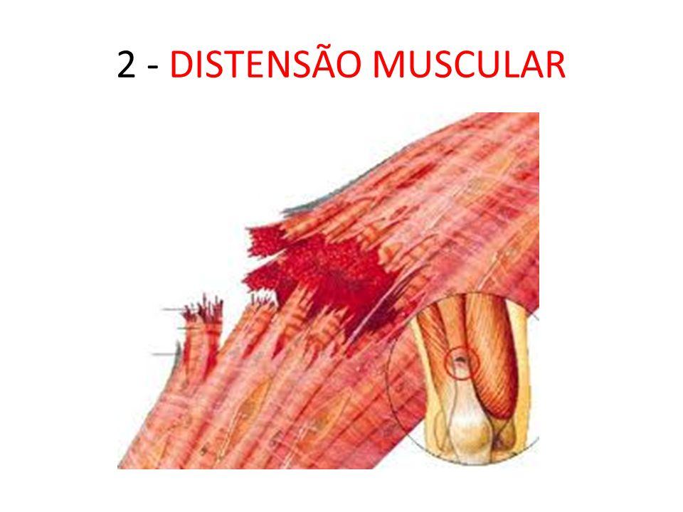 2 - DISTENSÃO MUSCULAR
