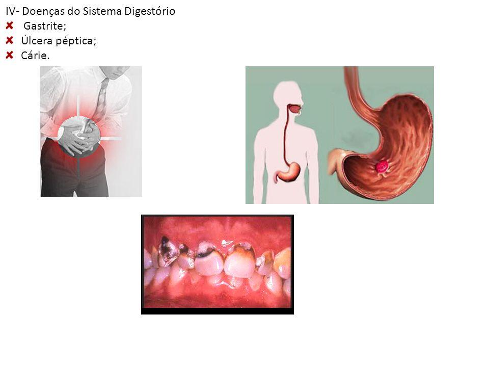 IV- Doenças do Sistema Digestório Gastrite; Úlcera péptica; Cárie.