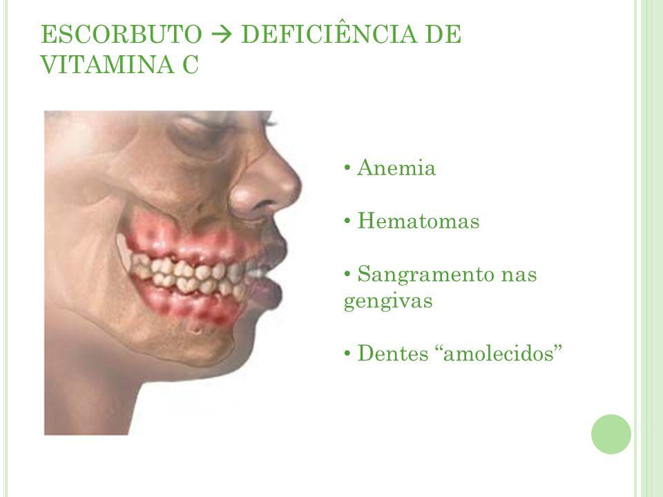 ESCORBUTO DEFICIÊNCIA DE VITAMINA C Anemia Hematomas Sangramento nas gengivas Dentes amolecidos