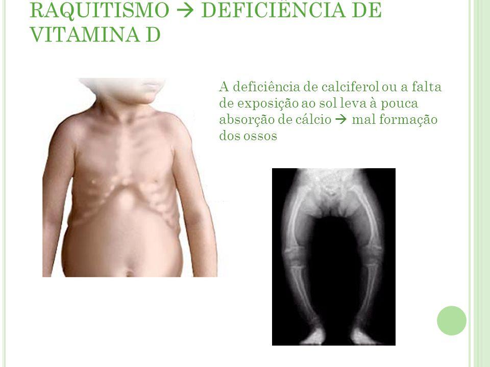 RAQUITISMO DEFICIÊNCIA DE VITAMINA D A deficiência de calciferol ou a falta de exposição ao sol leva à pouca absorção de cálcio mal formação dos ossos