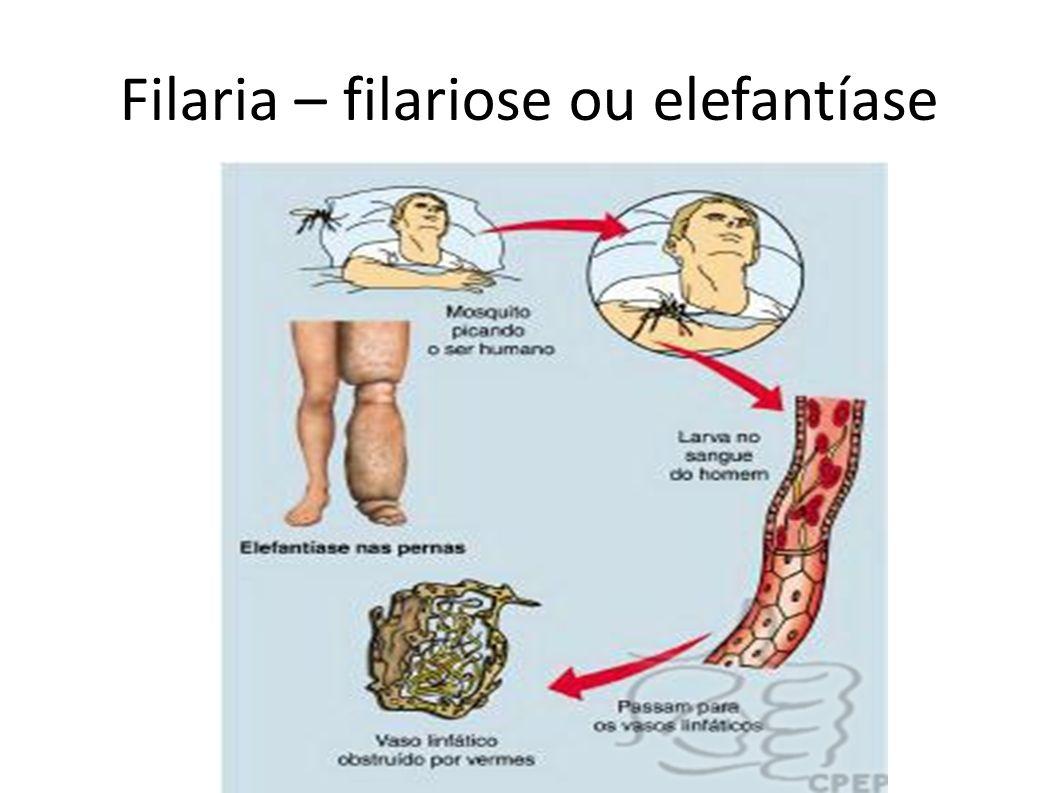 Filaria – filariose ou elefantíase