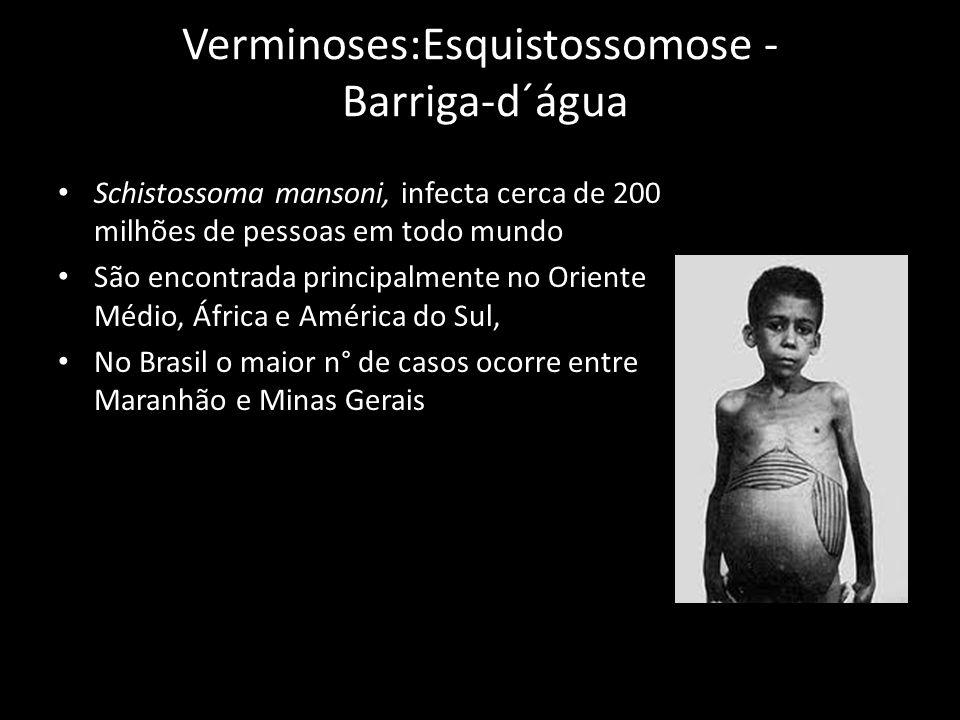 Verminoses:Esquistossomose - Barriga-d´água Schistossoma mansoni, infecta cerca de 200 milhões de pessoas em todo mundo São encontrada principalmente