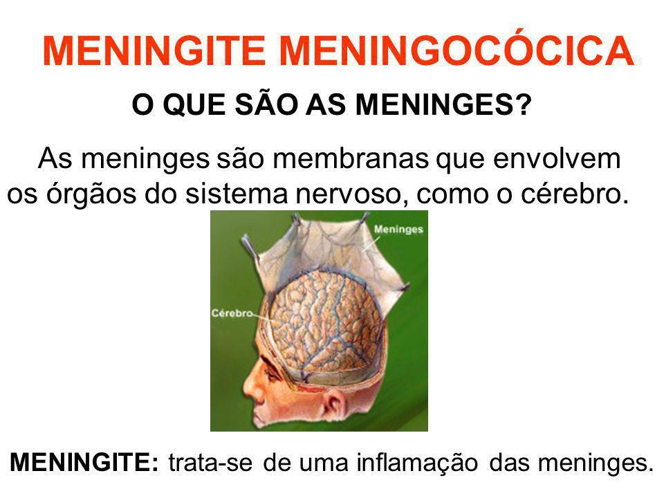 MENINGITE MENINGOCÓCICA O QUE SÃO AS MENINGES? As meninges são membranas que envolvem os órgãos do sistema nervoso, como o cérebro. MENINGITE: trata-s