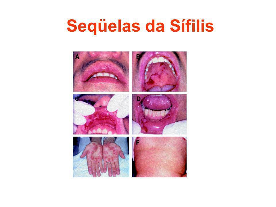 Seqüelas da Sífilis