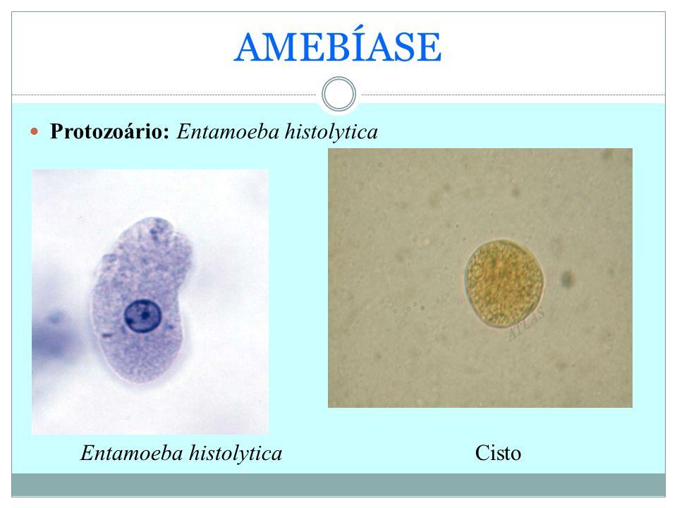 AMEBÍASE Protozoário: Entamoeba histolytica Entamoeba histolyticaCisto