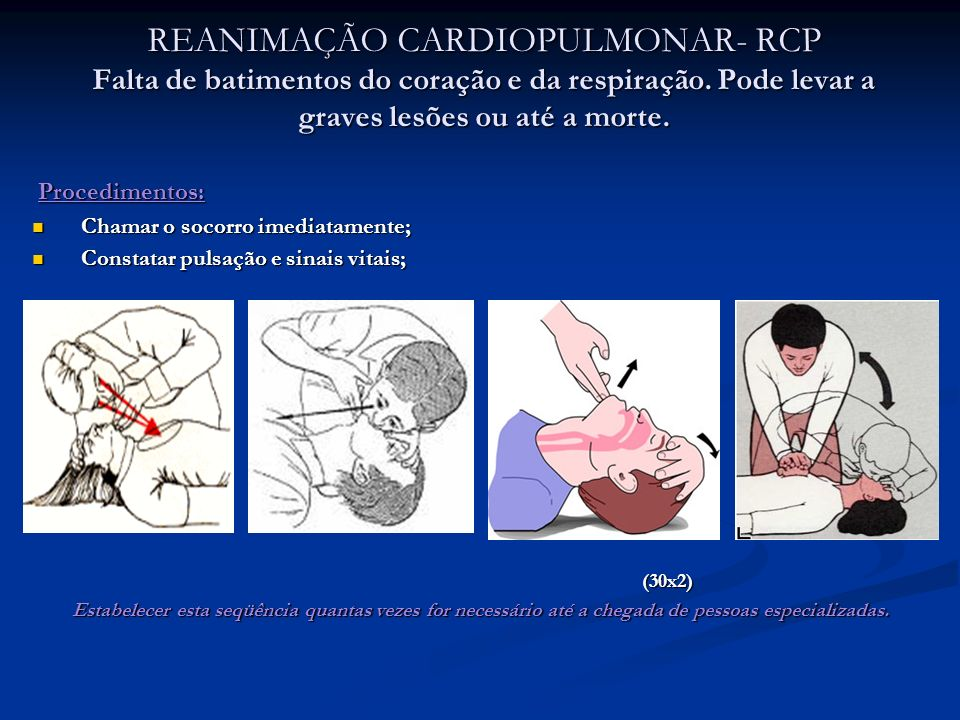 REANIMAÇÃO CARDIOPULMONAR- RCP Falta de batimentos do coração e da respiração. Pode levar a graves lesões ou até a morte. Procedimentos: Procedimentos