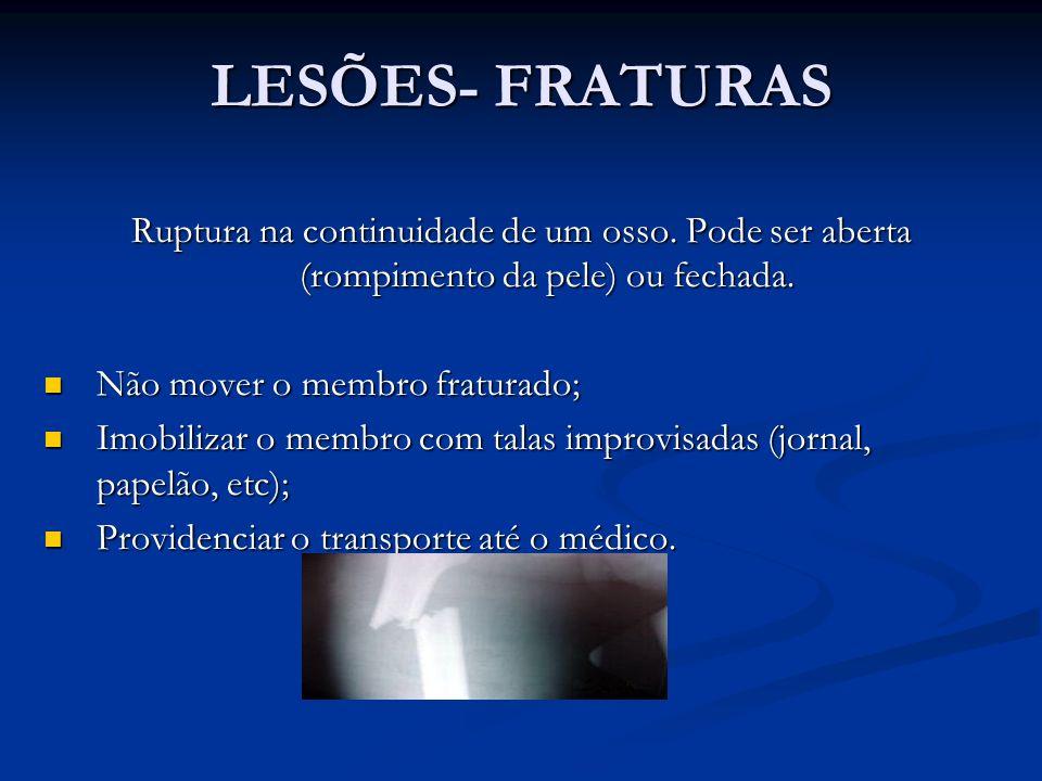 LESÕES- FRATURAS Ruptura na continuidade de um osso.