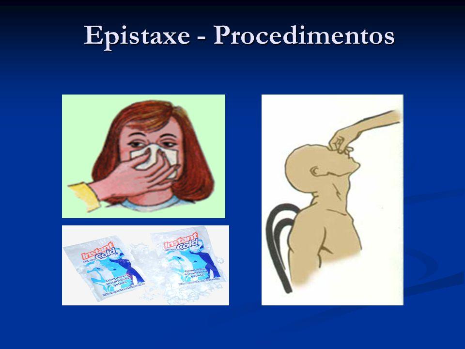 Epistaxe - Procedimentos Epistaxe - Procedimentos