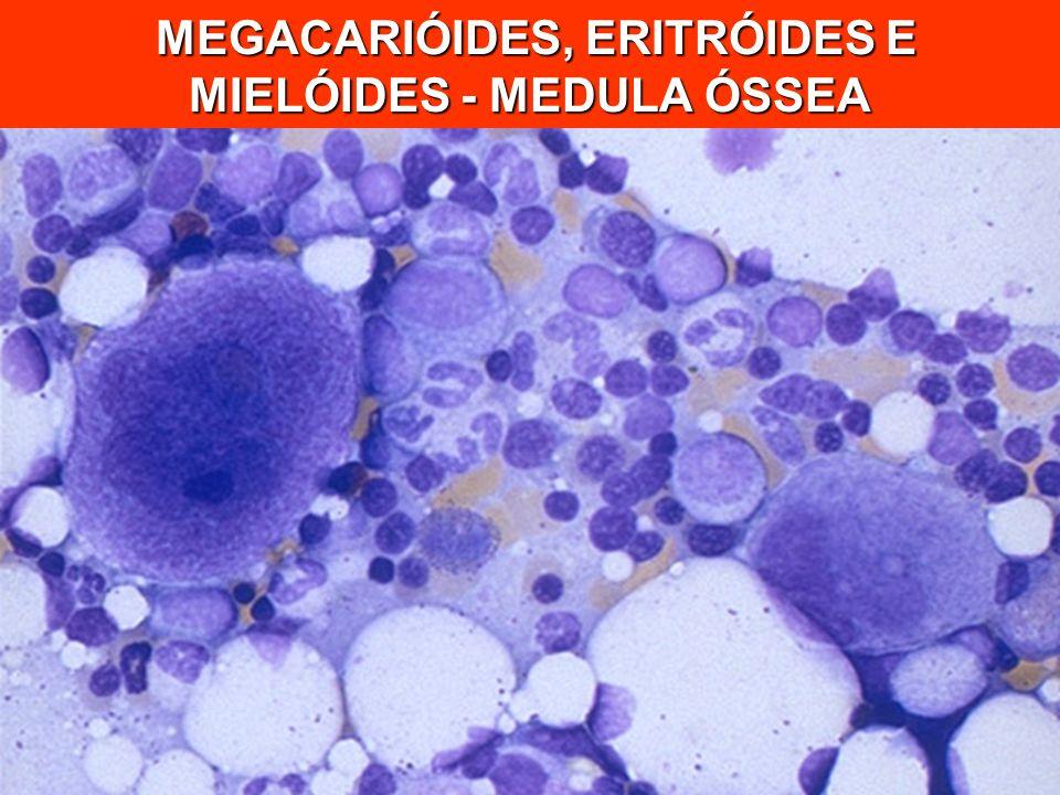 MEGACARIÓIDES, ERITRÓIDES E MIELÓIDES - MEDULA ÓSSEA MEGACARIÓIDES, ERITRÓIDES E MIELÓIDES - MEDULA ÓSSEA