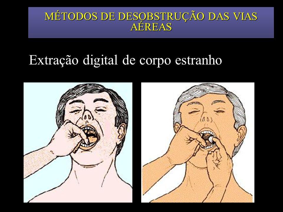 MÉTODOS DE DESOBSTRUÇÃO DAS VIAS AÉREAS Extração digital de corpo estranho