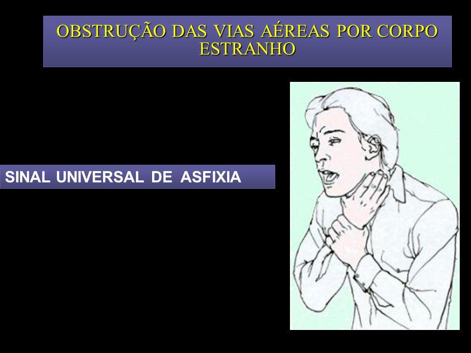 OBSTRUÇÃO DAS VIAS AÉREAS POR CORPO ESTRANHO SINAL UNIVERSAL DE ASFIXIA