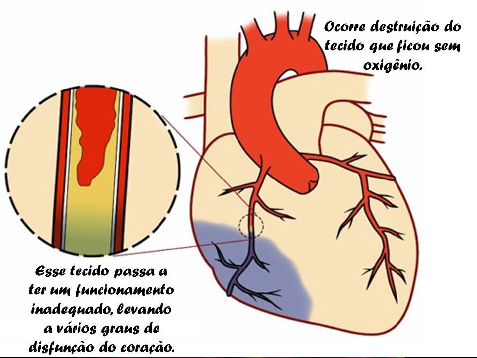 É quando ocorre o entupimento de uma das artérias que levam sangue com oxigênio para o coração. Esse tecido passa a ter um funcionamento inadequado, l