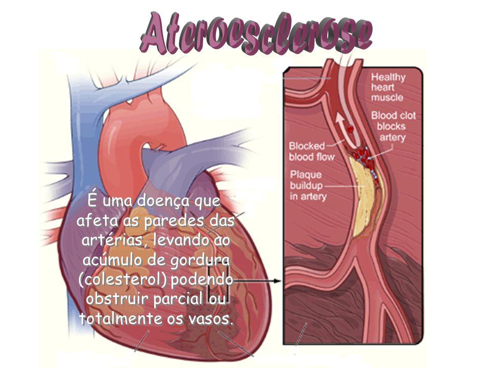 É uma doença que afeta as paredes das artérias, levando ao acúmulo de gordura (colesterol) podendo obstruir parcial ou totalmente os vasos.