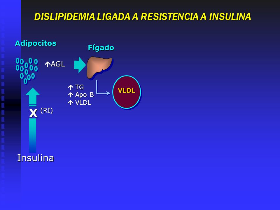 TG TG Apo B Apo B VLDL VLDL VLDL X Adipocitos Fígado Insulina (RI) AGL AGL DISLIPIDEMIA LIGADA A RESISTENCIA A INSULINA