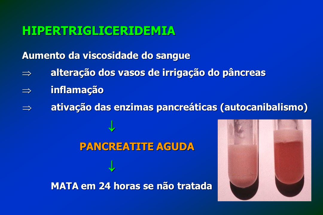 HIPERTRIGLICERIDEMIA Aumento da viscosidade do sangue alteração dos vasos de irrigação do pâncreas alteração dos vasos de irrigação do pâncreas inflam