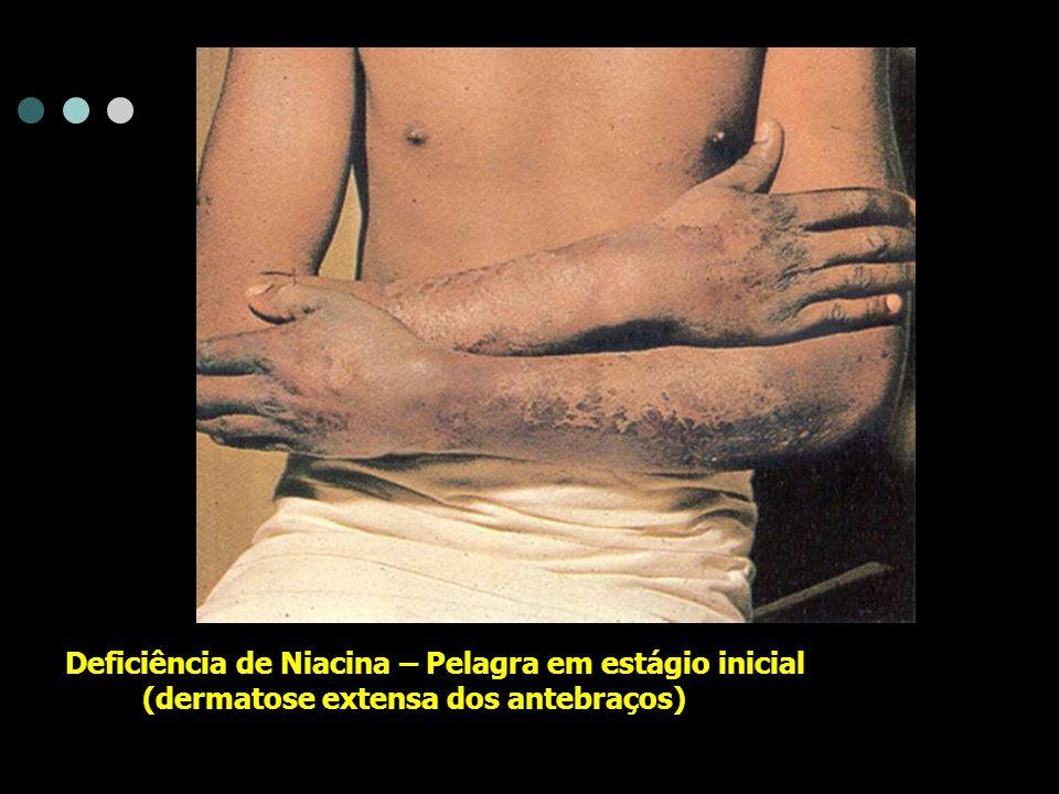 Deficiência de Niacina – Pelagra em estágio inicial (dermatose extensa dos antebraços)