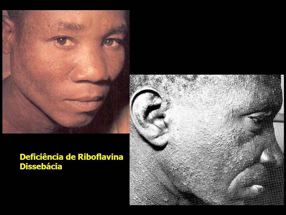 Deficiência de Riboflavina Dissebácia