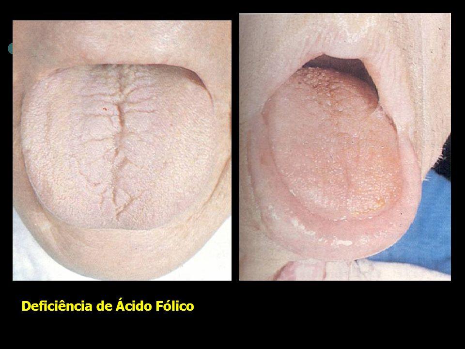 Deficiência de Ácido Fólico