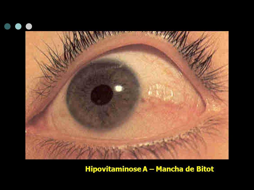 Hipovitaminose A – Mancha de Bitot
