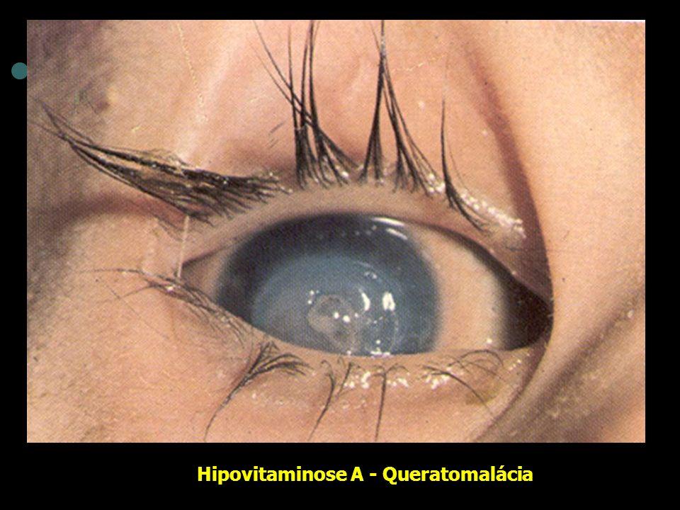 Hipovitaminose A – Queratomalácia (total)