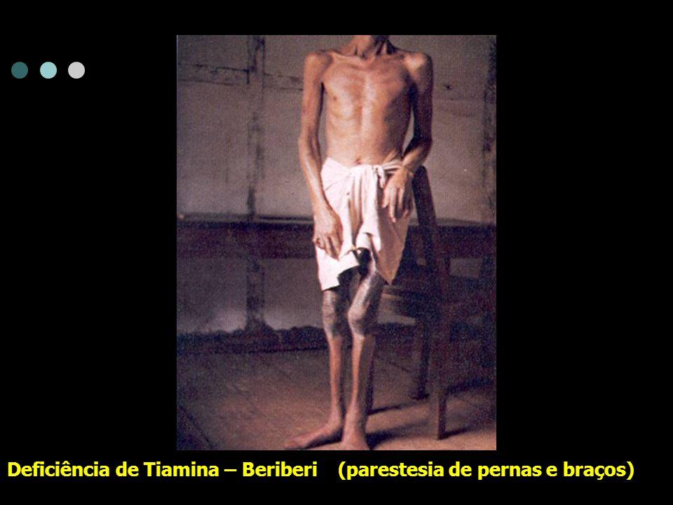 Deficiência de Cobalamina – língua avermelhada, com atrofia de papilas, freqüente na Anemia Perniciosa