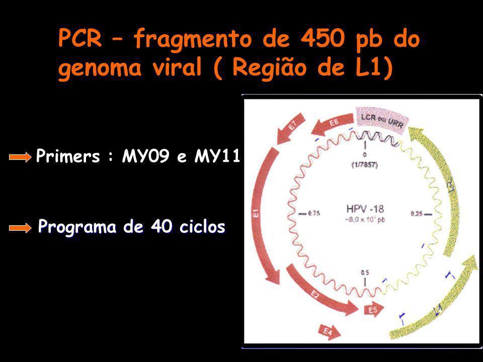 PCR – fragmento de 450 pb do genoma viral ( Região de L1) Primers : MY09 e MY11 Programa de 40 ciclos