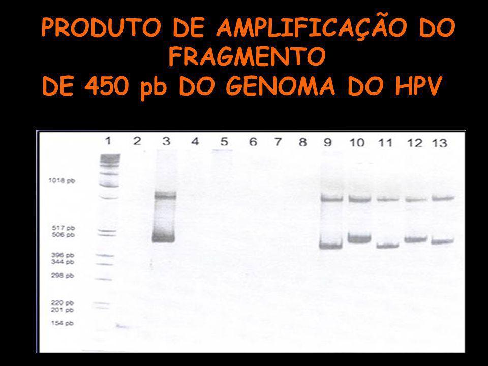 PRODUTO DE AMPLIFICAÇÃO DO FRAGMENTO DE 450 pb DO GENOMA DO HPV