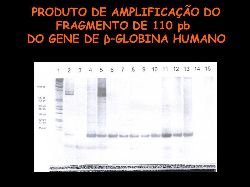 PRODUTO DE AMPLIFICAÇÃO DO FRAGMENTO DE 110 pb DO GENE DE β–GLOBINA HUMANO