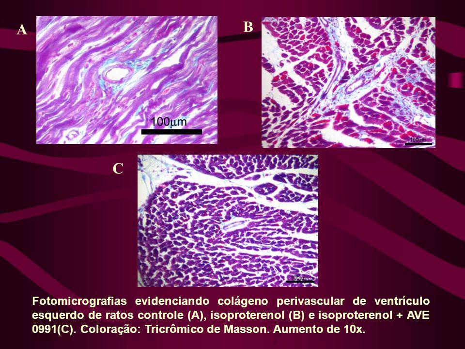 Fotomicrografias evidenciando colágeno perivascular de ventrículo esquerdo de ratos controle (A), isoproterenol (B) e isoproterenol + AVE 0991(C).