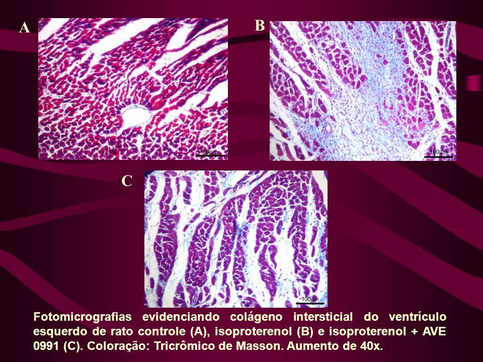 Fotomicrografias evidenciando colágeno intersticial do ventrículo esquerdo de rato controle (A), isoproterenol (B) e isoproterenol + AVE 0991 (C).