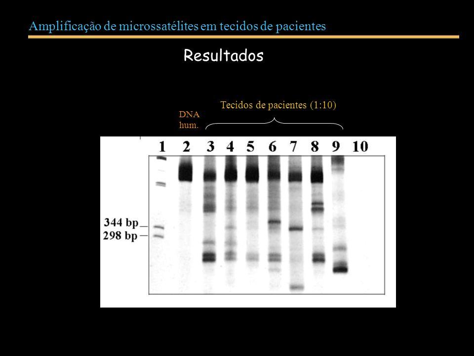 Amplificação de microssatélites em tecidos de pacientes Resultados DNA hum. Tecidos de pacientes (1:10)