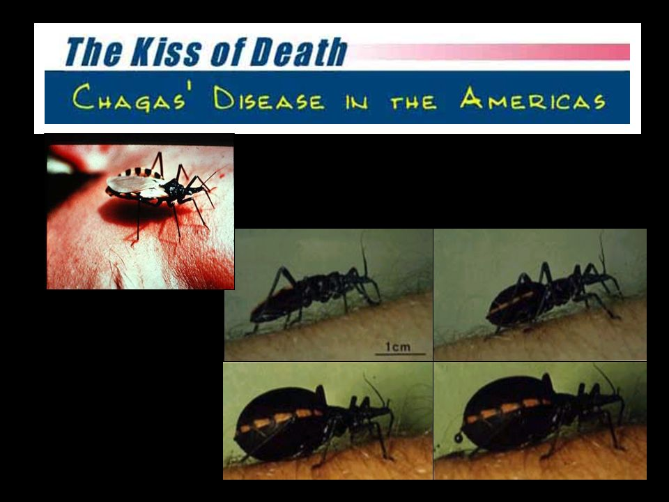 Fase Aguda alta parasitemia alto parasitismo tissular edema periorbital (1-2%) sintomas leves miocardites/encefalites agudas Doença de Chagas