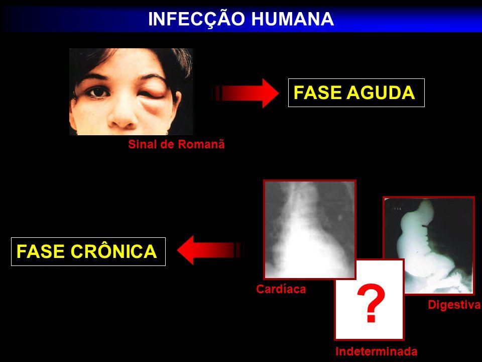 A doença de Chagas indeterminada cardíaca digestiva cardio-digestiva Fase crônica: indeterminada cardíaca digestiva cardio-digestiva Dias, 1985