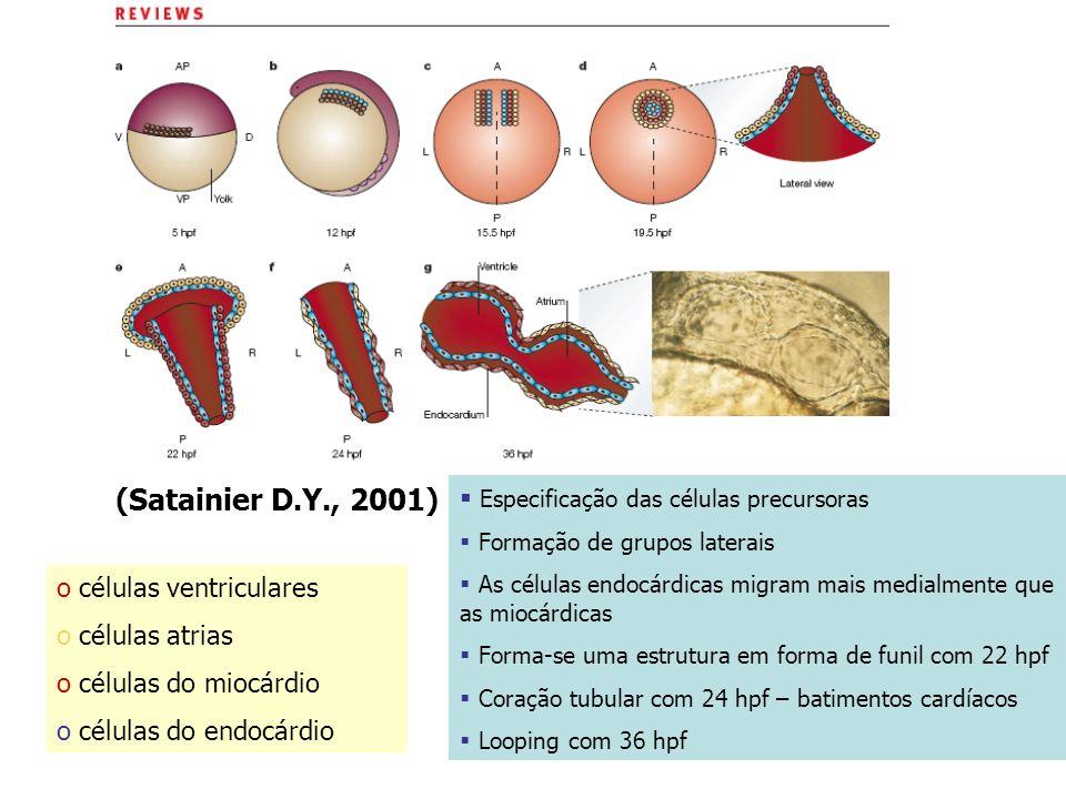 o células ventriculares o células atrias o células do miocárdio o células do endocárdio Especificação das células precursoras Formação de grupos later