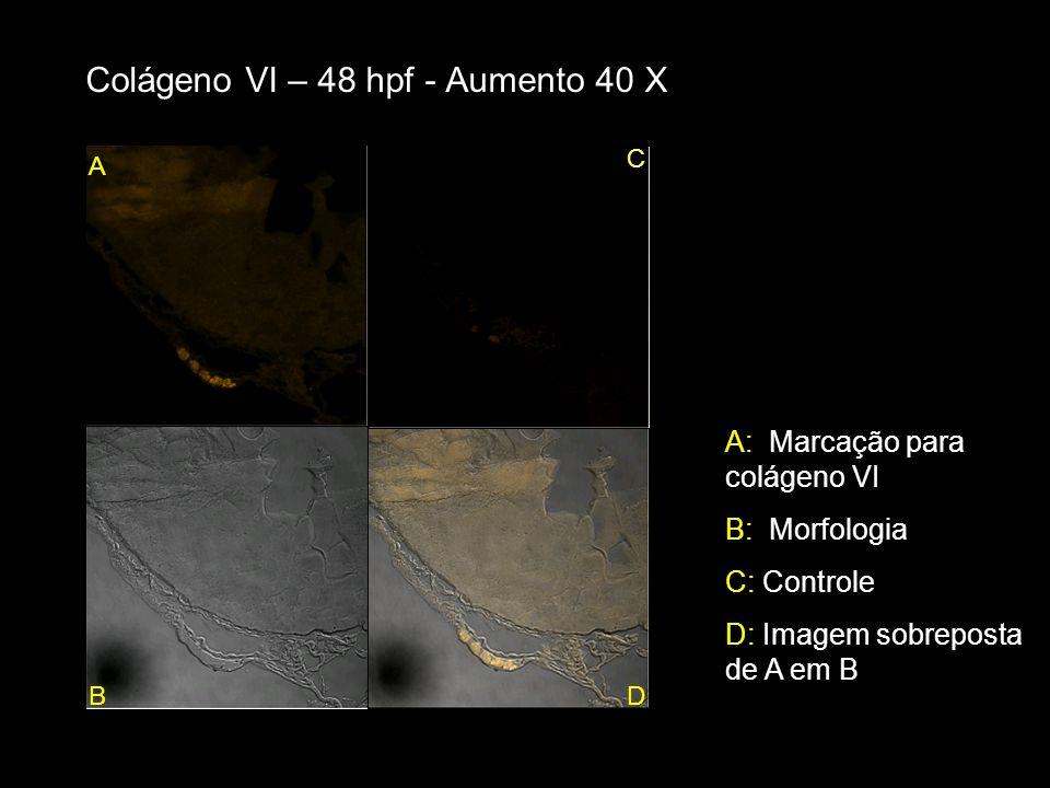 Colágeno VI – 48 hpf - Aumento 40 X A: Marcação para colágeno VI B: Morfologia C: Controle D: Imagem sobreposta de A em B A BD C