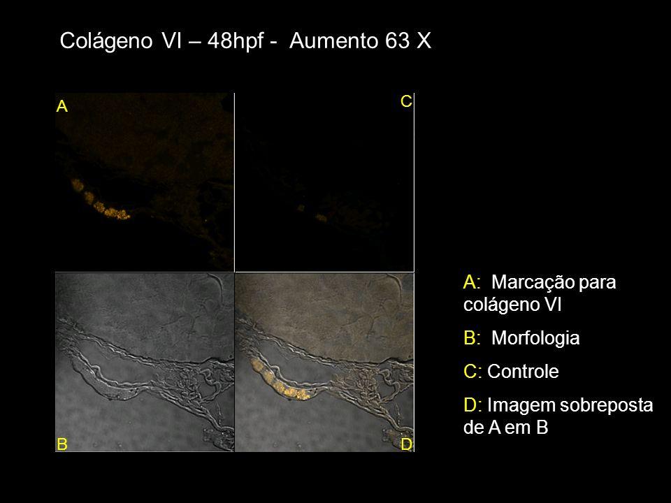Colágeno VI – 48hpf - Aumento 63 X A B C D A: Marcação para colágeno VI B: Morfologia C: Controle D: Imagem sobreposta de A em B