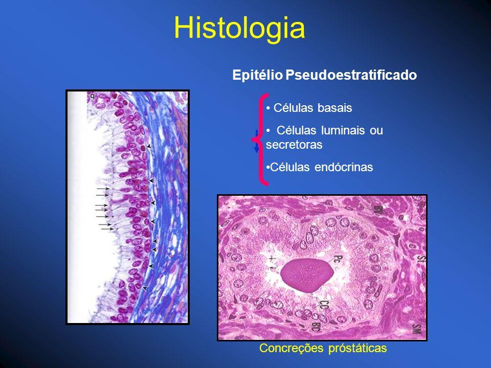 Epitélio Pseudoestratificado Células basais Células luminais ou secretoras Células endócrinas Concreções próstáticas Histologia