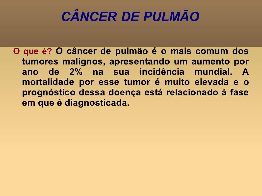 CÂNCER DE PULMÃO O que é? O câncer de pulmão é o mais comum dos tumores malignos, apresentando um aumento por ano de 2% na sua incidência mundial. A m