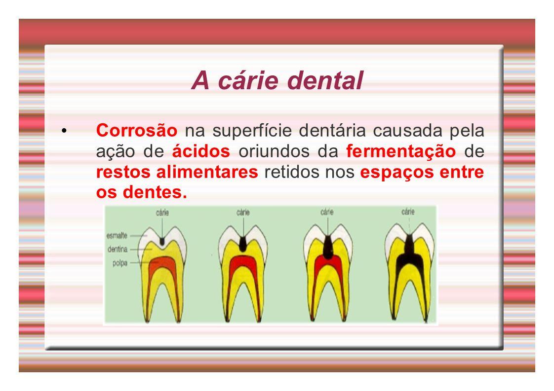 A cárie dental Corrosão na superfície dentária causada pela ação de ácidos oriundos da fermentação de restos alimentares retidos nos espaços entre os